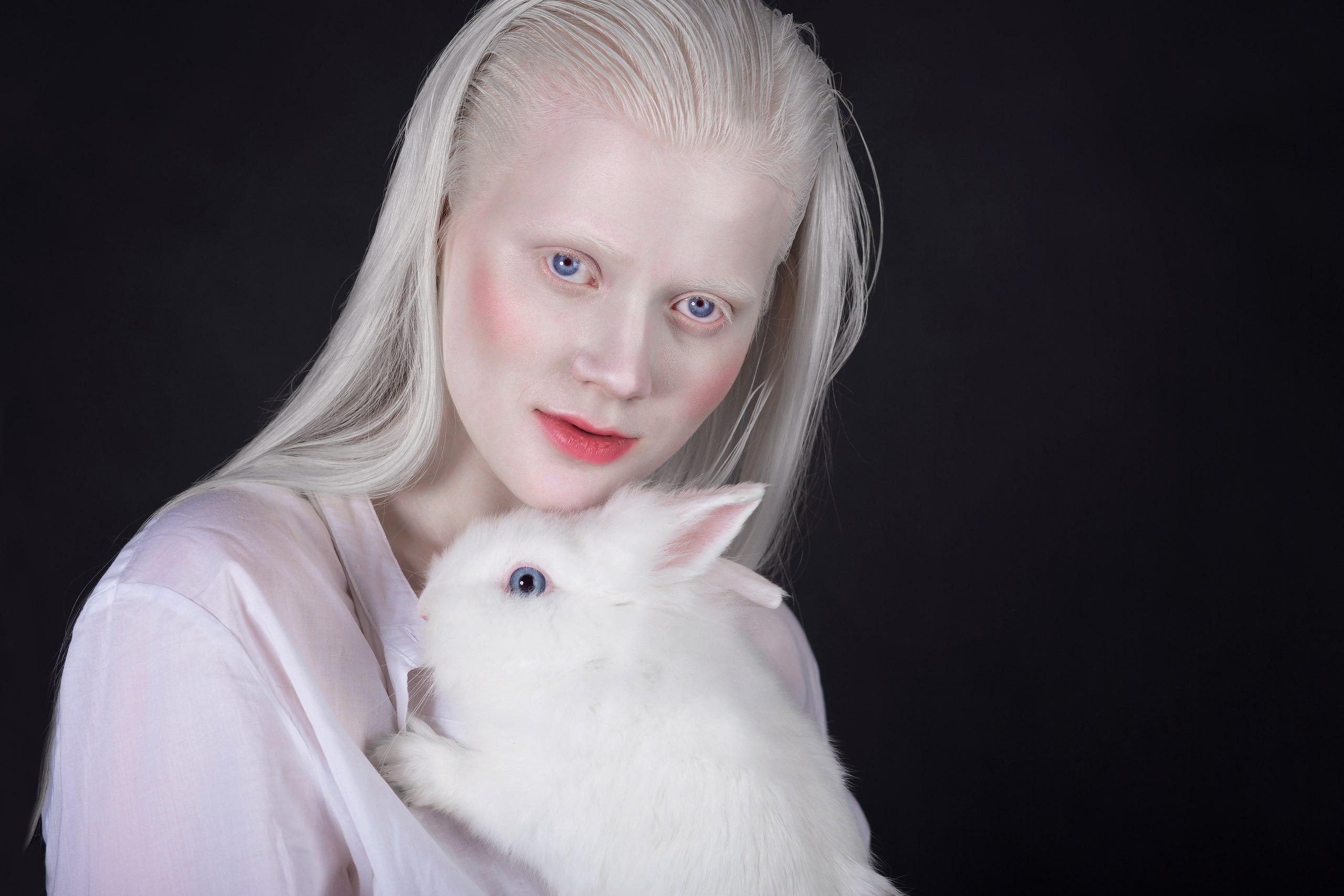 реальные фото альбиносов турции курортный сезон